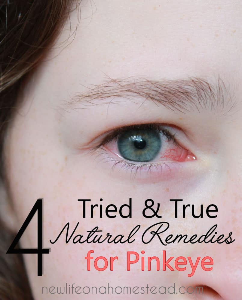 4 Tried and True Natural Remedies for Pinkeye   newlifeonahomestead.com