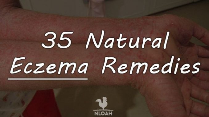 eczema remedies logo
