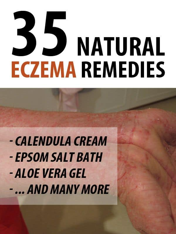 eczema remedies pinterest