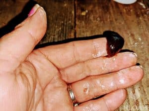 amish black salve on finger