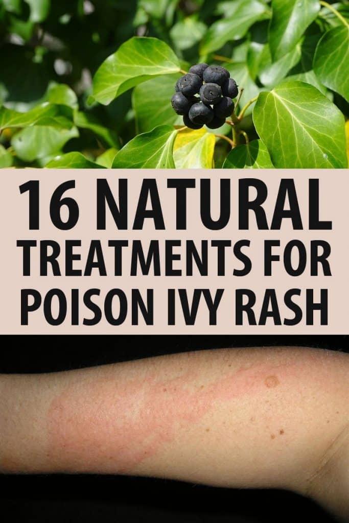 poison ivy rash remedies pinterest